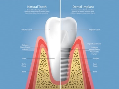 Why Dental Implants are the best way to replace a missing tooth